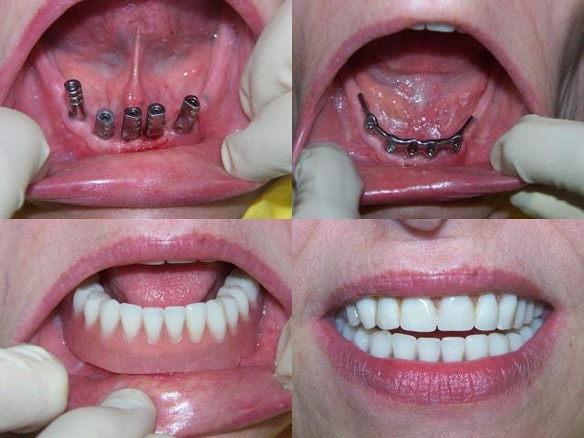 implant dentaire pas cher region parisienne